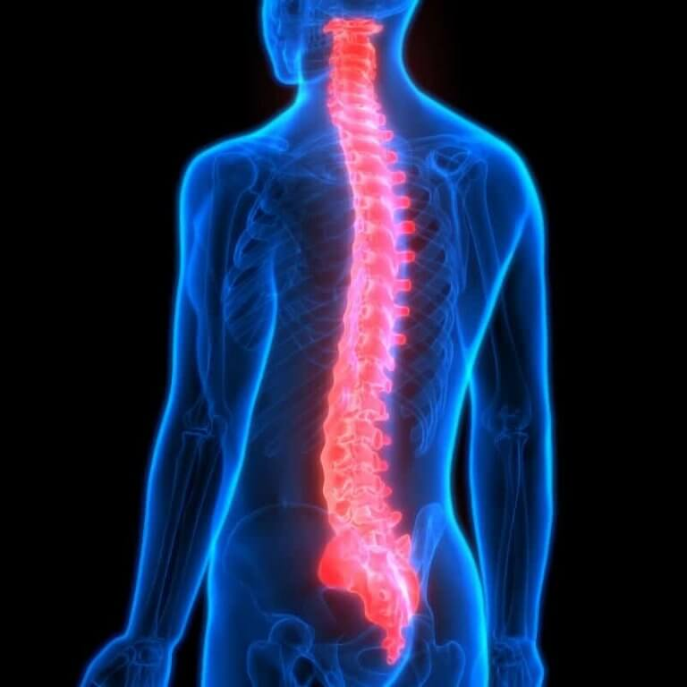 The human spine can cause back pain