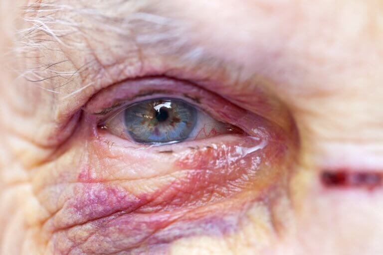 Close up picture of an elderly woman's injured eye and face - domestic violence